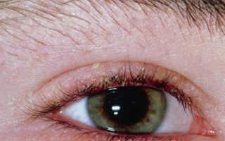 Глазной клещ — описание, симптомы заражение, осложнения, эффективное лечение