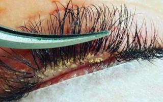 Ресничный клещ — описание, лечение, профилактика