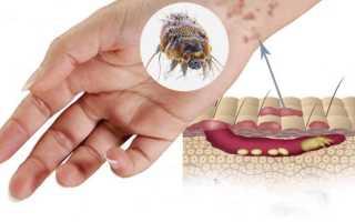 Чесоточный клещ — описание, симптомы чесотки, лечение и профилактические действия