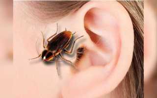 Не паникуйте и поспешите ко врачу, если таракан уже в вашем ухе!