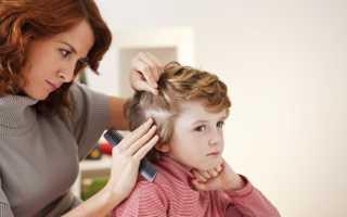 Вши у детей — описание педикулеза, симптоматика, причины заражения, способы лечения