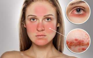 Подкожный клещ у человека — симптомы, лечение и профилактика!