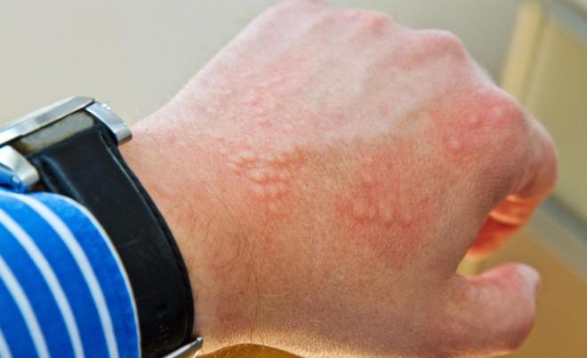 Аллергия на укус клопов