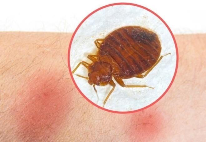 Аллергия на укус клопа
