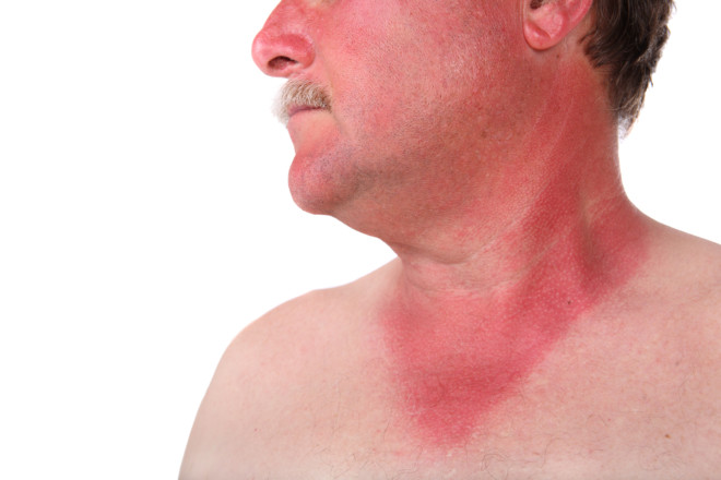 Лихорадка геморрагического типа