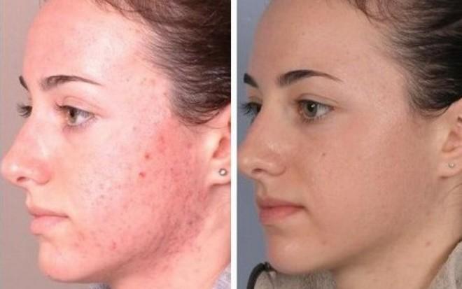 Подкожный клещ до и после лечения