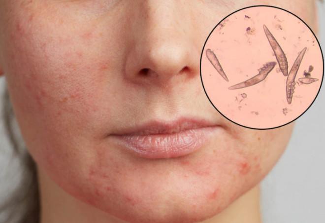 Появление демодекоза на лице