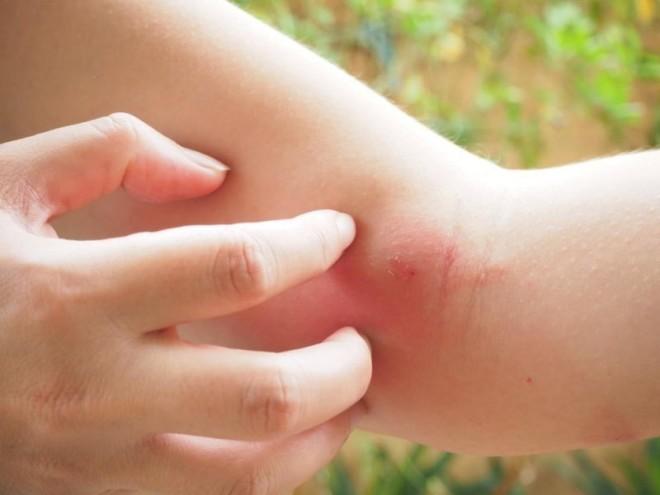 Рана воспалилась