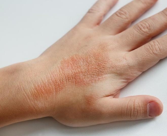 Аллергия от укуса