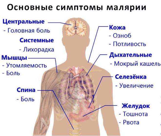 Малерия симптомы