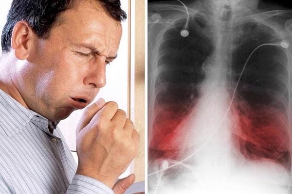Пневмония у человека